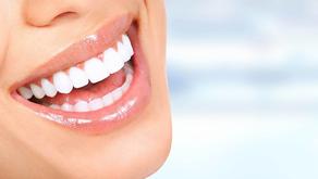 Tips para mantener tus dientes blancos