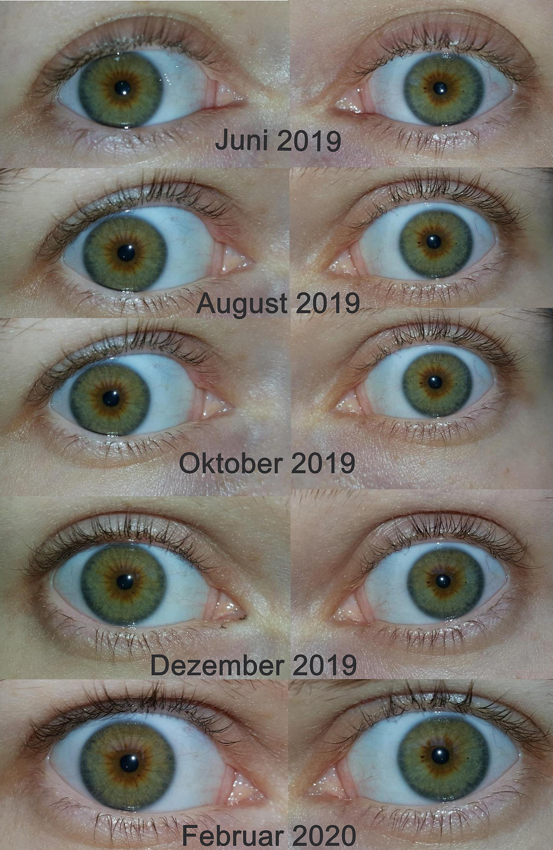 Augenfarben alle die augenfarben