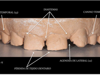 Estética dental: Disilicato de Litio