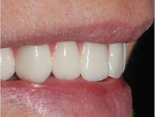Estética dental: Soporte labial compensado con implantes