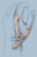 Trapeziectomy after.png