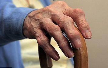 finger arthritis.png