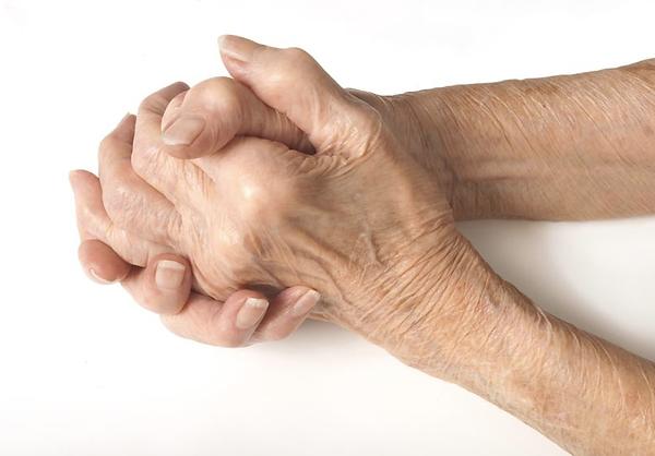 Arthrtis hands