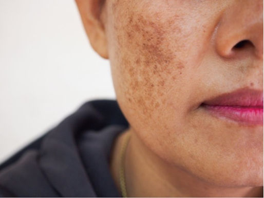 Melasma: Treatment, Causes & Prevention