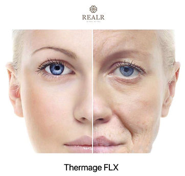 thermage result 5.jpg