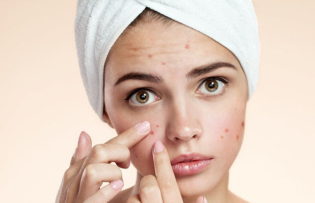 acne-spot-pimple-2.jpg