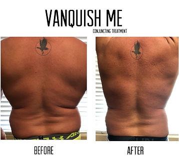 VanquishA.jpg