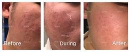SR Program 痘坑,妊娠纹,疤痕修复 众测招募