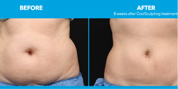 CoolSculpting Boston | Fat Freezing Treatment | Realr Skin Clinic