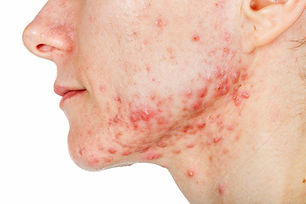 young-girl-with-acne.jpg