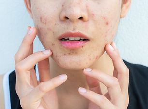 Acne_woman_fingers_GettyImages-117584151
