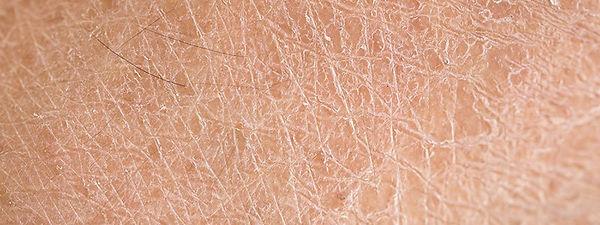 dry-skin-6.jpg