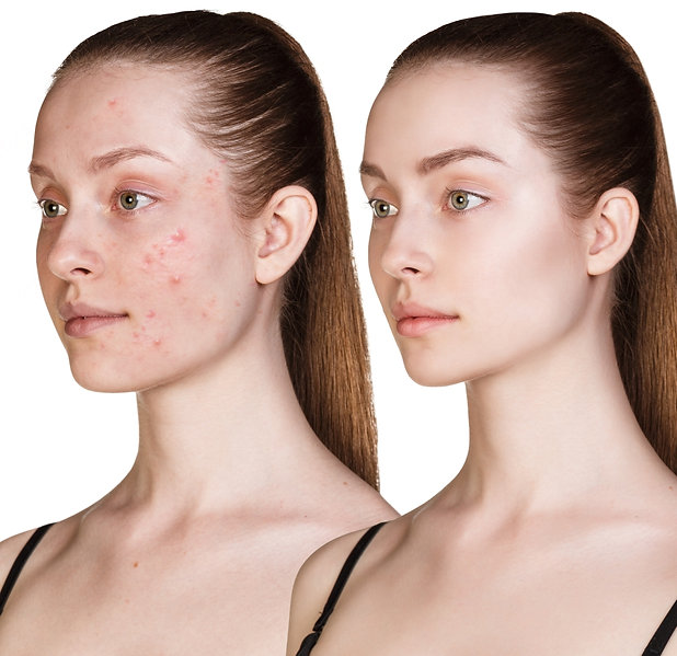 acne-and-rosacea-1024.jpg