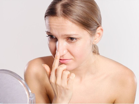 What are blackheads- And how do you remove?