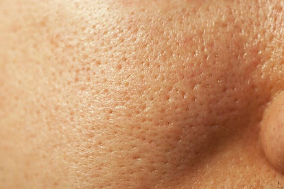extremely-large-pores-2.jpg