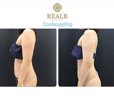 cool sculpting result 1.jpg