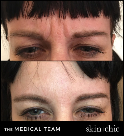 Botox Missoula