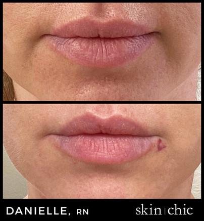 Missoula Lip Filler Injections