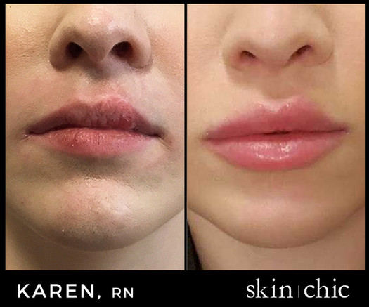 Microneedling and lip filler