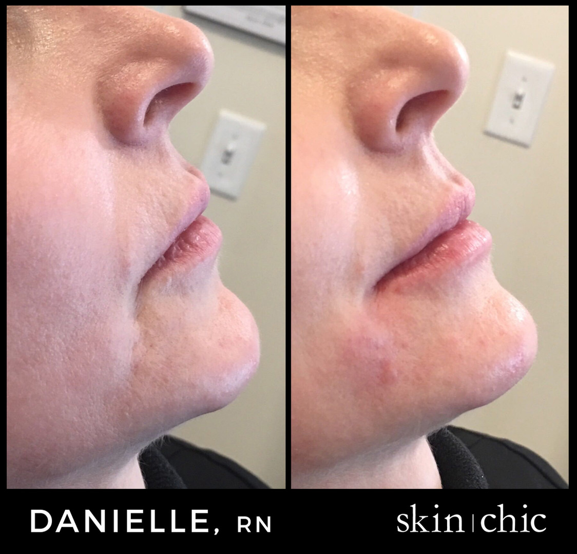 Missoula Chin Filler Voluma