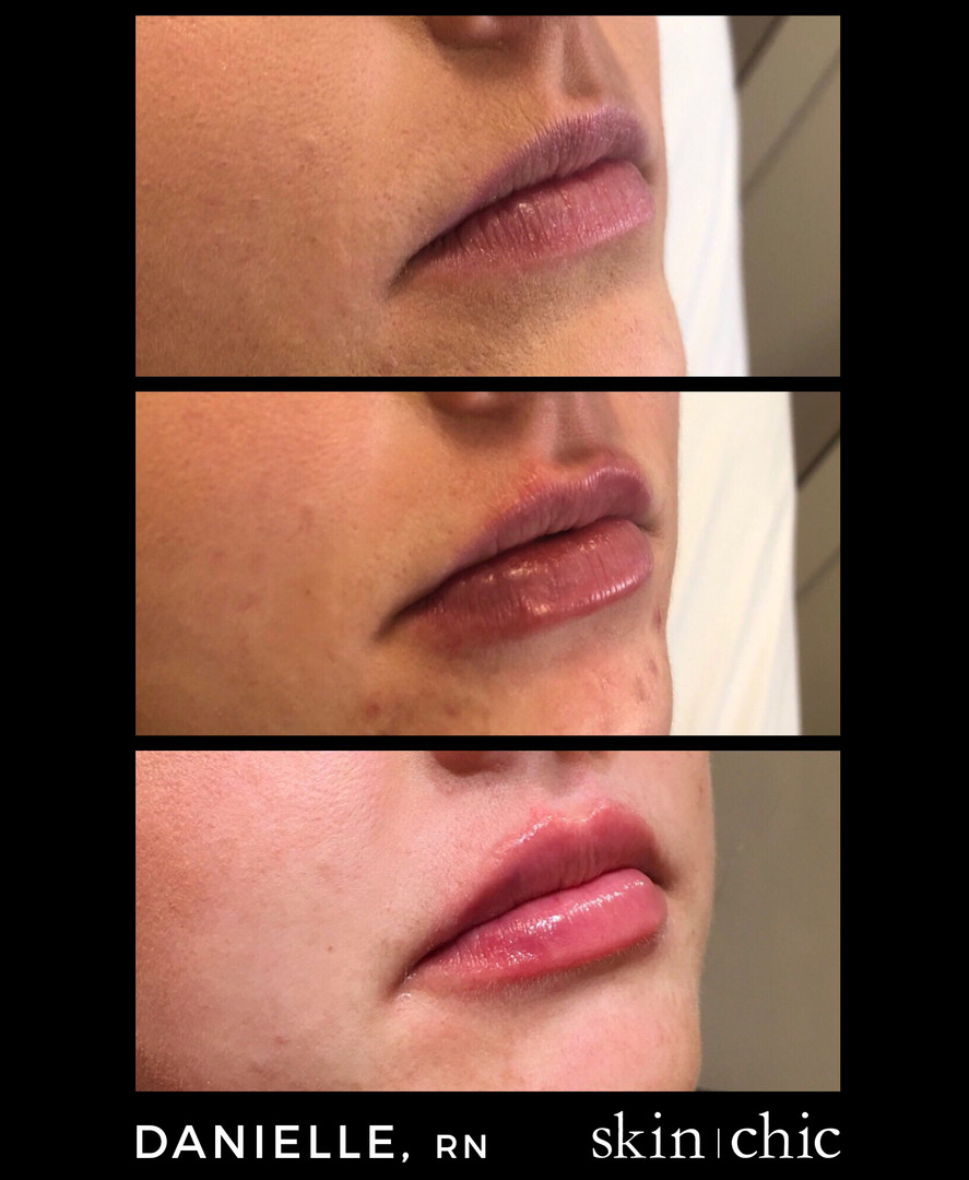 Missoula Lip Injections Volbella