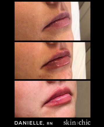 Missoula Lip Injections Volbella