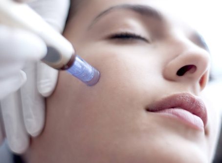 Microneedling with PRP: How does it work?