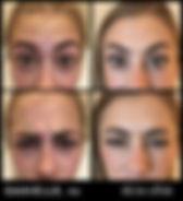 Missoula Botox Dysport