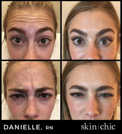Missoula Botox Before and After