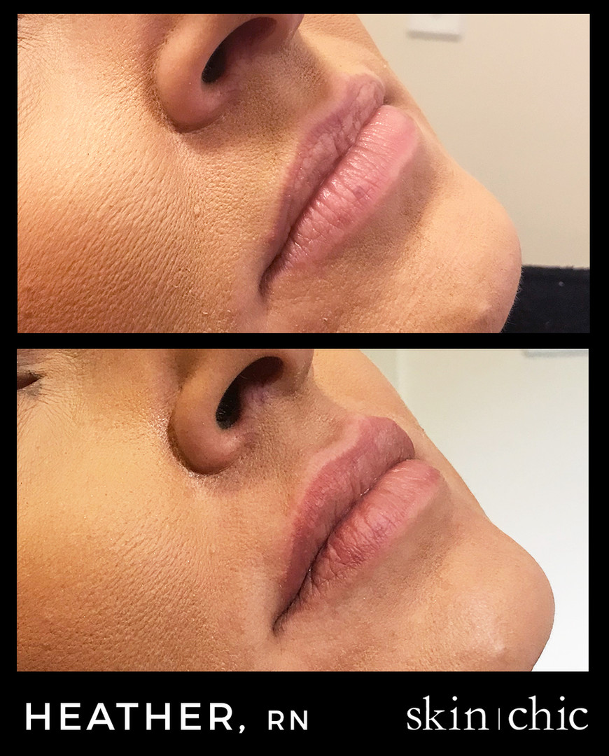 Missoula Lip Filler Restylane