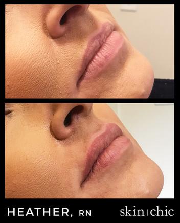 Missoula Lip Filler Restylane