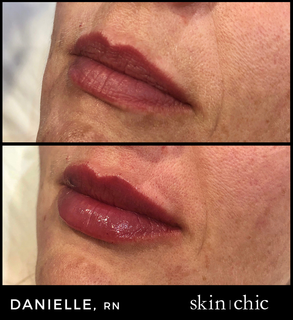 Missoula Lip Filler Juvederm