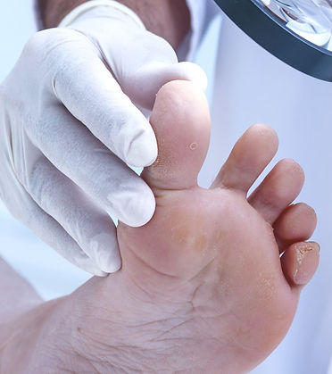 Everything you want to know about fungal toenails