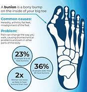 bunion-infographic_edited.jpg