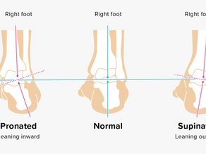 Helping Overpronation: Why Shoe Stability is the Key