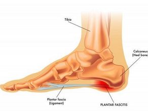 4 Common Foot Problems and What Shoes to Wear