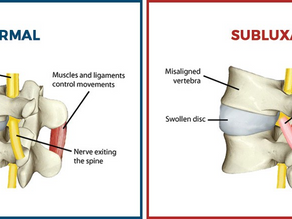 What is Subluxation and Why Does Foot Health Matter?