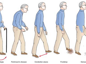 What is Gait Abnormality and How Can You Monitor it?
