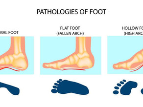 Shoe Size Guide: Understanding the Fit of a Shoe