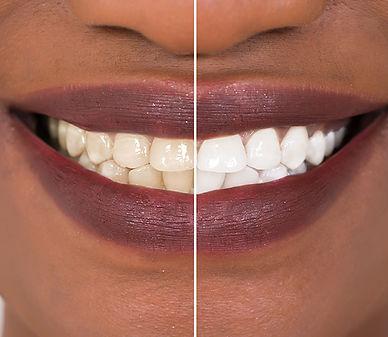 teeth-whitening-header-1.jpg