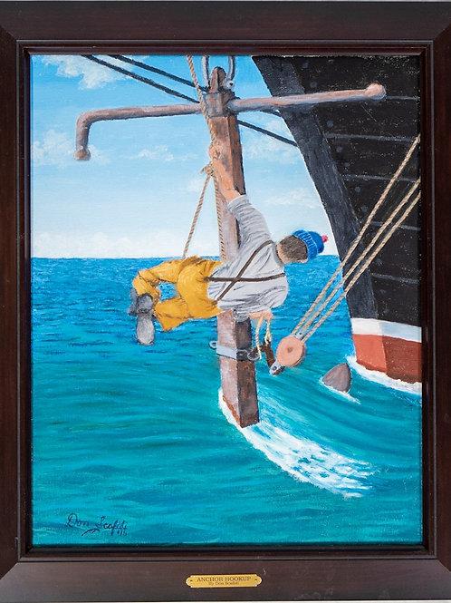Anchor Hookup