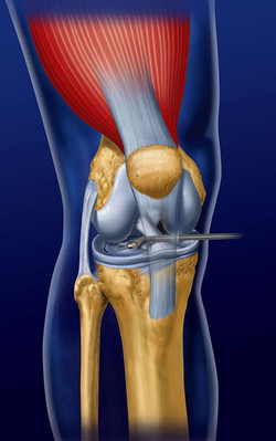 [SurgicalSolutions] Meniscus Device