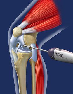 [OBI] Knee Surgery Device