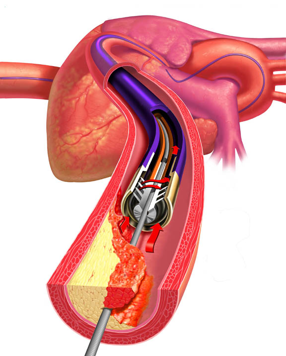 [MTI] Heart Catheter