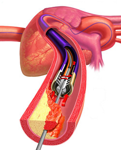 [MTI] Heart Catheter