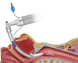 [Smith Med] Breathing Tube