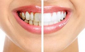 чистка зубов Нико-Дент.jpg