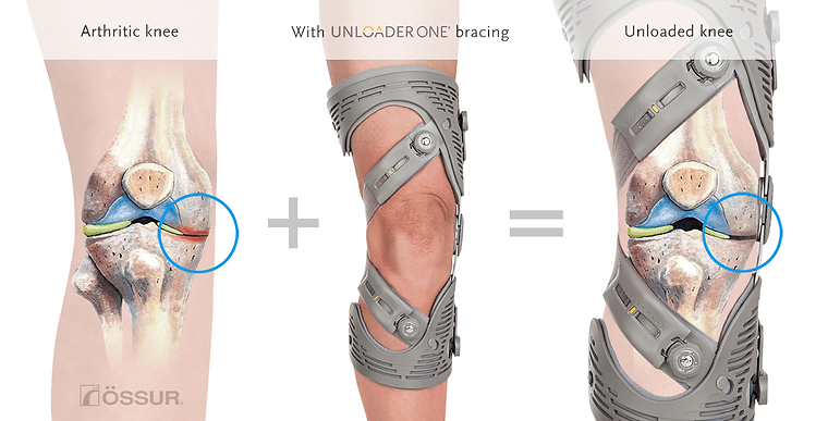 Unloader-knee-joint.png