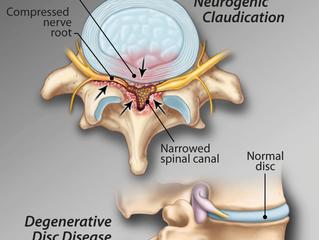Neurogenic Claudication