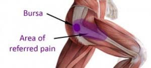 Trochanteric bursitis - What is it and how can it be treated?